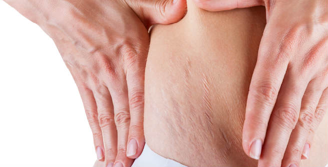 Top 10 Best Pregnancy Stretch Mark Removal Creams for Women
