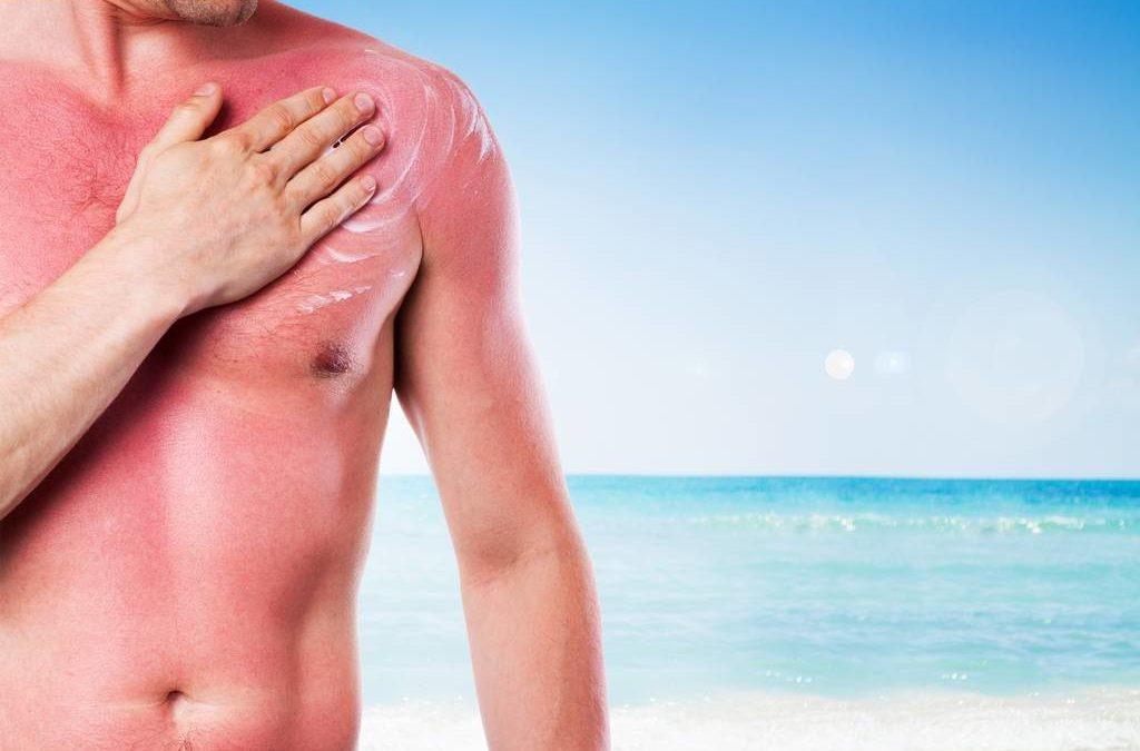 How To Stop Peeling After Sunburn