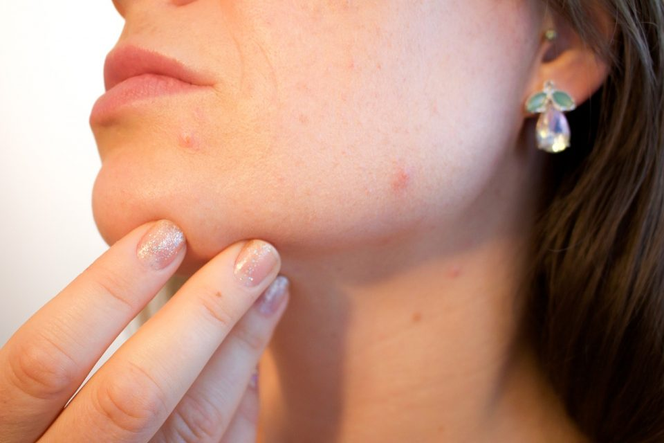 Blackhead Removal: How to Effectively Clear Your Skin